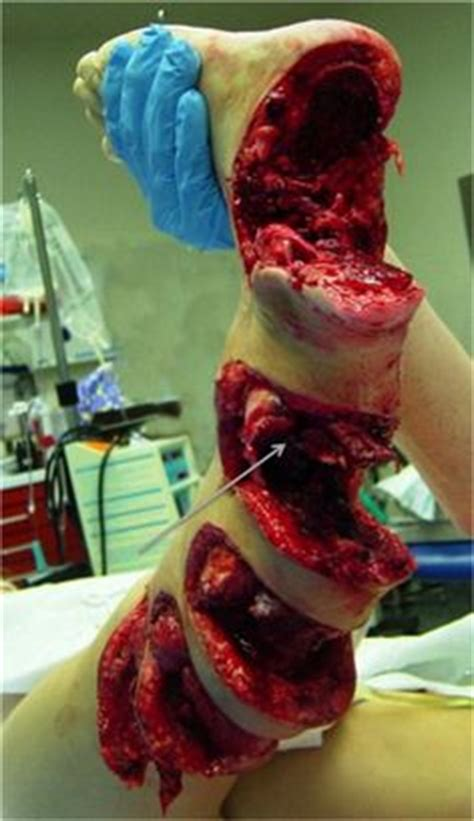 boat propeller injury photos 1000 images about wtf on pinterest boat propellers