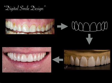 cape town dentist dr jj serfontein  cape town south