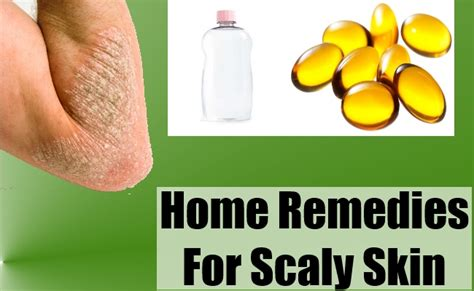 home remedies for skin how to prevent scaly skin