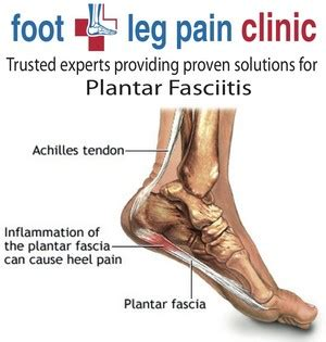 I Went To The Podiatrist To My Aching Foot Ch by Foot Leg Clinics In South Yarra Melbourne Vic