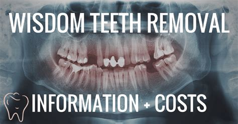 tooth extraction cost wisdom teeth removal costs information dental guide australia