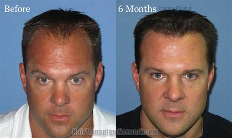 hair transplant before and after hair restoration surgery before and after photographs with