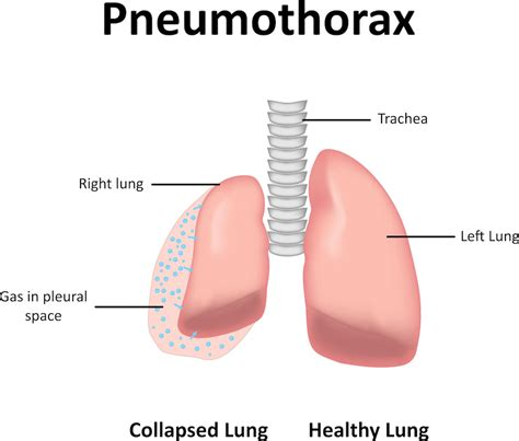anatomy of a child s lung pediatric pulmonologists pneumothorax right lung pediatric pulmonologists