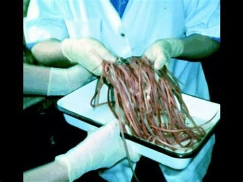 Does Detoxing Clean Out Tapeworms by Removing Intestinal Worms Parasites From A Bodybuilders