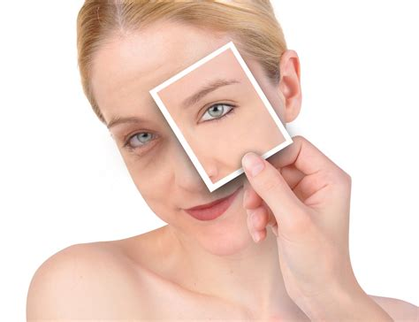 7 Best Treatments For Eye Circles by How To Reduce Circles Remove Circles