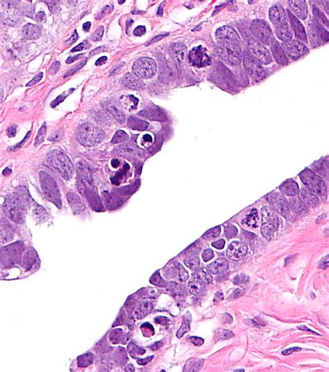 nucleolar pattern definition definition and algorithm ovarian cancer prevention
