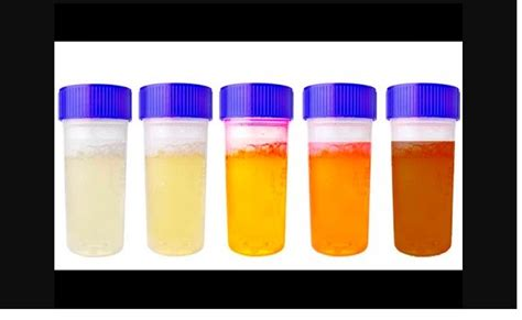 beets urine color check color of your urine it says lot about your health