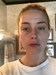 heard of amber heard and johnny depp photos show alleged domestic abuse people com