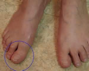 examen clinique du pied
