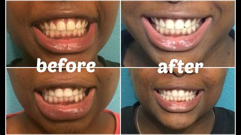 whiten teeth   weeks  activated charcoal youtube