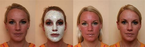 3 photodynamic therapy for acne philadelphia robert brown spots and agespots treatment in philadelphia line