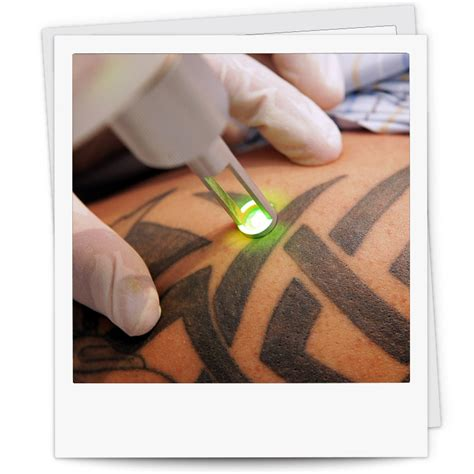 tattoo removal q switched nd yag