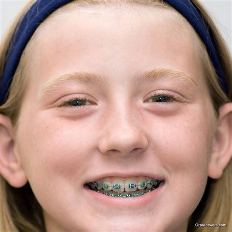 60 photos of teenagers with braces answers