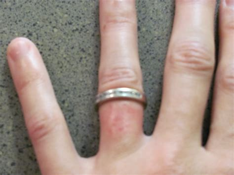 Wedding Ring Rash Cure by Ring Rash On Finger Pictures Photos