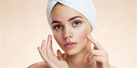 menghilangkan jerawat  wajah secara alami prikasa