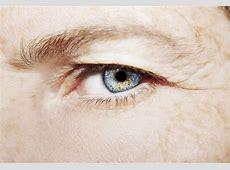 Baggy Eyelids: Dermatochalasis Symptoms & Treatment ... Home Treatment For Baggy Eyes