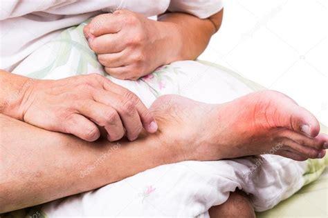 abbraccio a letto uomo a letto abbraccio piedi con infiammazione dolorosa