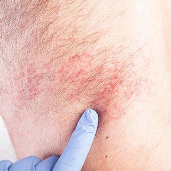 shingles contagious period, cause, treatment, vaccine