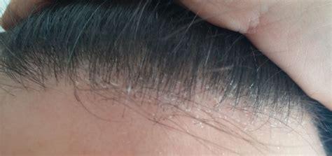 crosticine in testa dermatite seborroica capelli e cuoio capelluto