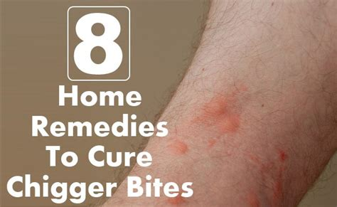 10 steps to get rid of chigger bites howtoxp com difference between chiggers and fleas rachael edwards