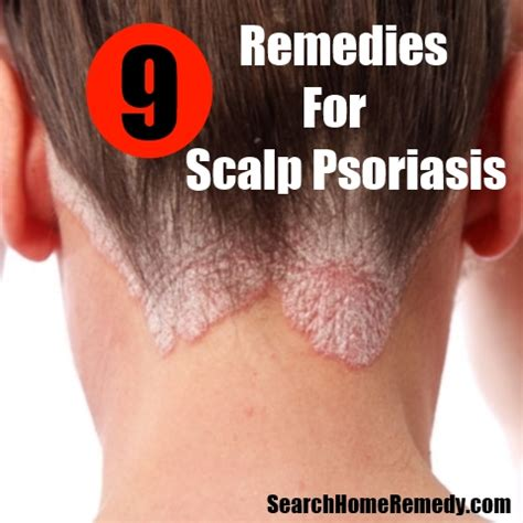 scalp psoriasis cure driverlayer search engine