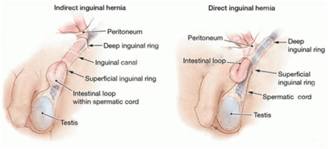 treat inguinal hernia without surgery the five best ways to do it