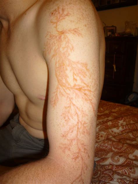 tattoo lightening 8 amazing lightning scars picture