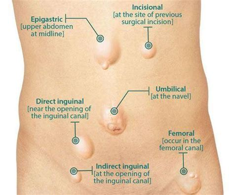 about your hernia inguinal hernia symptoms causes femoral hernia treatment chennai