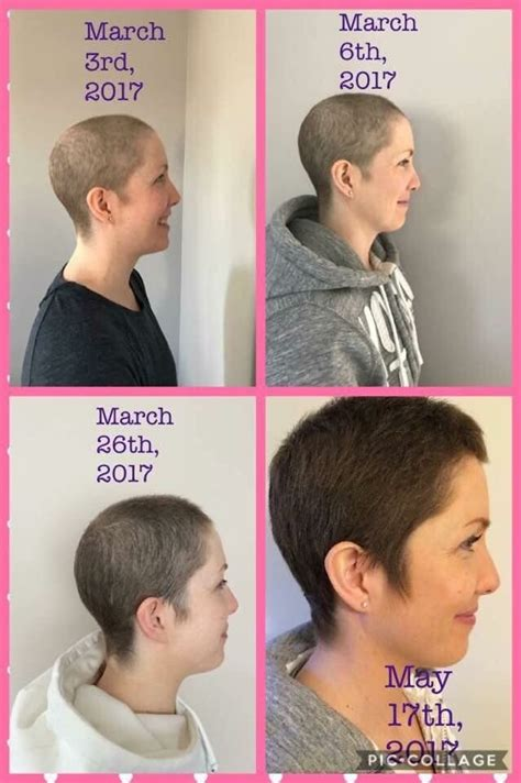 chemo hair growth pictures hair regrowth after chemo hairbyclaire mymonat com monat