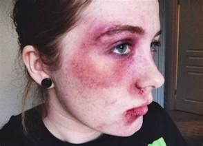 Blind Side Real People Black Eye Bruising Makeup Makeup Morgue Pinterest