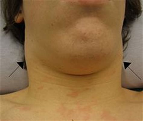 icd 10 swelling of face lymphadenopathy wikipedia the free encyclopedia