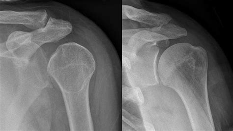 dislocated shoulder joint dislocation