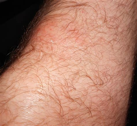knee rug burn i a rash small bumps redish area itchy on both knees