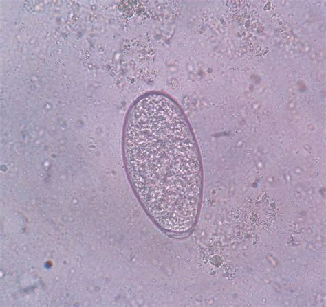Trichomonas In Stool by Pics For Gt Trichomonas Hominis In Stool