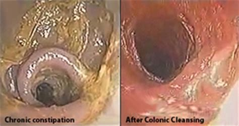 Laxative Detox Before And After by On What Is Inside My Colon