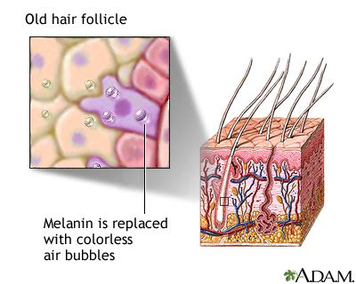 hair follicles in older women narrowing aging changes in hair and nails uf health university of