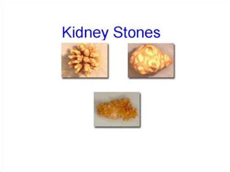 home remedies for kidney stones review home remedies for