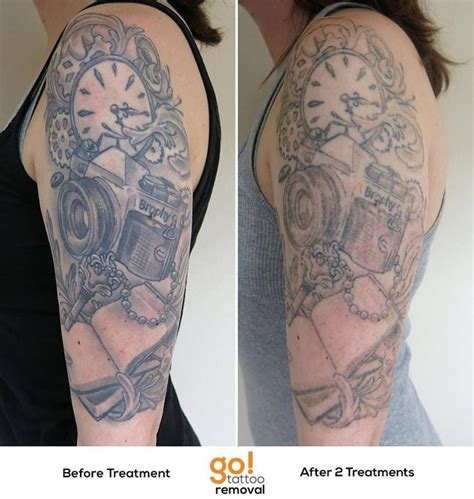 full sleeve tattoo removal 788 best removal in progress images on