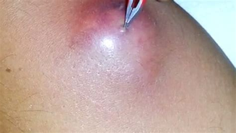 cyst popped popping sebaceous cyst dailymotion pictures