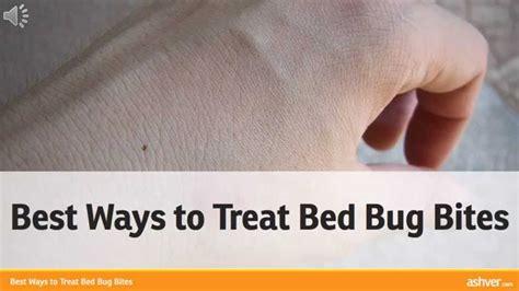 ways  treat bed bug bites youtube
