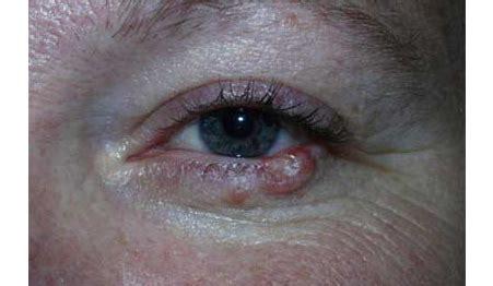 eyelid tumor eyelid tumor removal denver eye tumor treatment boulder co