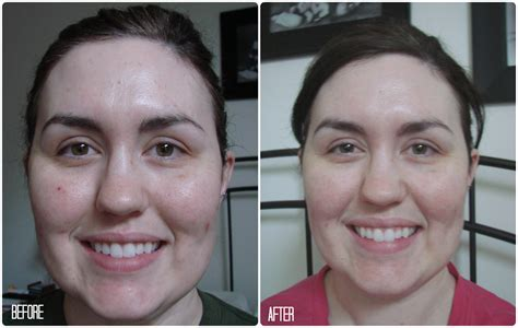 clarisonic 2 review before after clarisonic 2 before and after