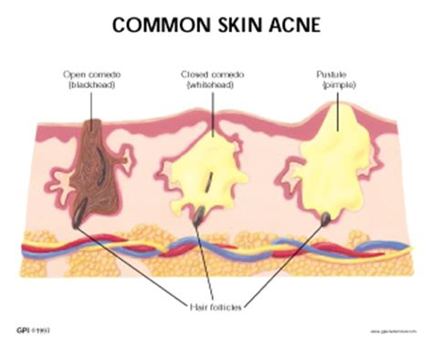 Cystic Pimple Diagram Types Of human skin acne model 3750 for sale anatomy now