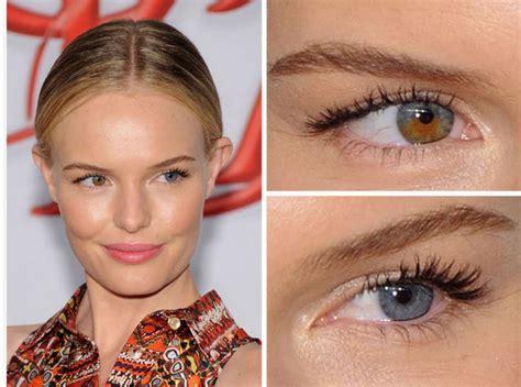 colore degli occhi diversi occhi colore diverso archivi camo centro ambrosiano