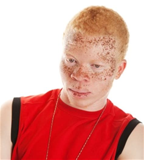 what color are albinos what causes albinism