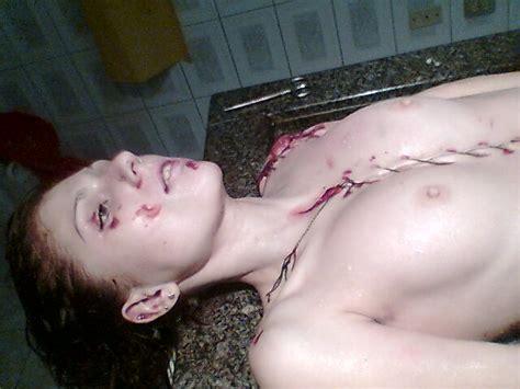 Nude Girls Morgue Dead Body Autopsy Sex Porn Images