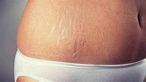 stretch marks the complete and concise guide everyone