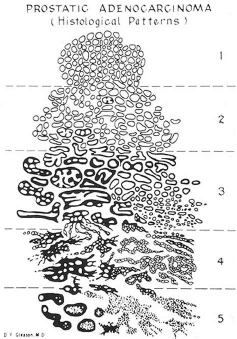 pattern grading notes enjoy pathology