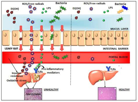 full body tattoo liver failure microbiome and liver related keywords microbiome and
