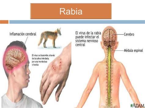 la rabia y el 8497340531 la prevenci 243 n de diversas enfermedades la rabia 191 que es y como prevenirla